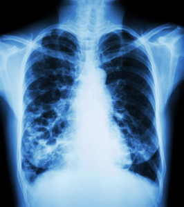 Life Insurance with Bronchiectasis